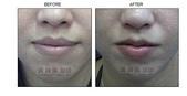 縮唇手術案例分享:縮唇手術案例分享第二部曲-2