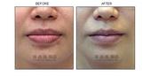 縮唇手術案例分享:縮唇手術案例分享第四部曲