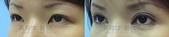 開眼頭手術:開眼頭003