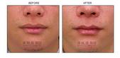 縮唇手術案例分享:縮唇手術案例分享第三部曲