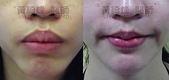 縮唇手術案例分享:縮唇002