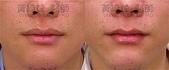 縮唇手術案例分享:縮唇001