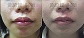 縮唇手術案例分享:縮唇006-1