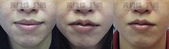 縮唇手術案例分享:縮唇004