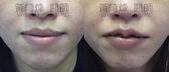 縮唇手術案例分享:縮唇004-1