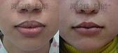縮唇手術案例分享:縮唇005