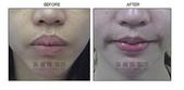 縮唇手術案例分享:縮唇手術案例分享第一部曲-1