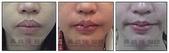 縮唇手術案例分享:縮唇手術案例分享第一部曲-2