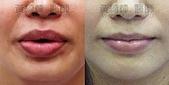 縮唇手術案例分享:縮唇003