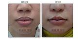 縮唇手術案例分享:縮唇手術案例分享第五部曲