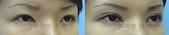 開眼頭手術:開眼頭002