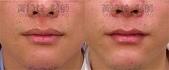 縮唇手術案例分享:縮唇-001.jpg